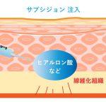 ニキビ跡の凹み治療・肌のクリニックの考え方6