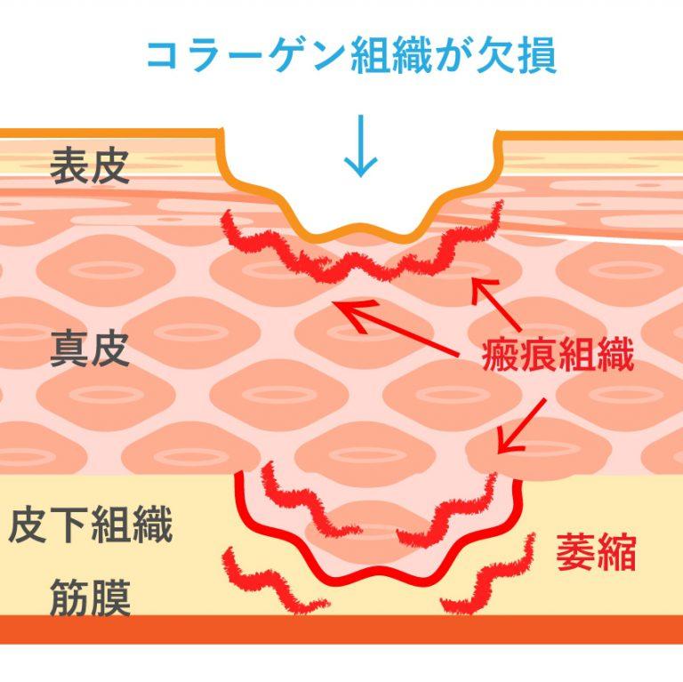 ニキビ跡の凹み治療・肌のクリニックの考え方5