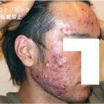 日本のニキビ治療の問題点とアキュテイン治療症例