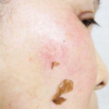 シミが剥がれる化粧品の嘘広告に注意
